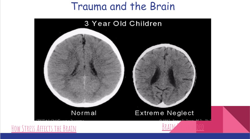 What a brain that has experienced trauma can look like