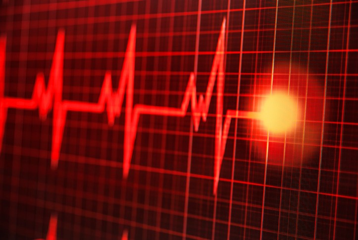 EKG Screening